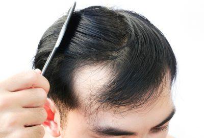 [新聞]  17種男性脫髮治療