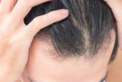 [新聞] 阻止頭髮稀疏的12種方法