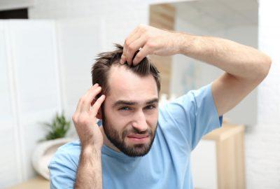 [新聞]有關髮際線恢復的所有知識