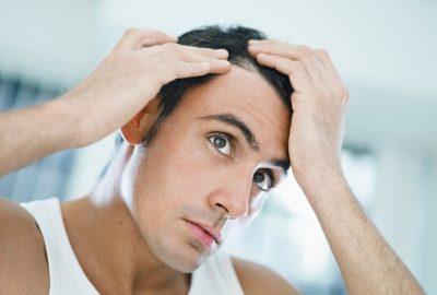 [新聞]   有關髮際線恢復的所有知識